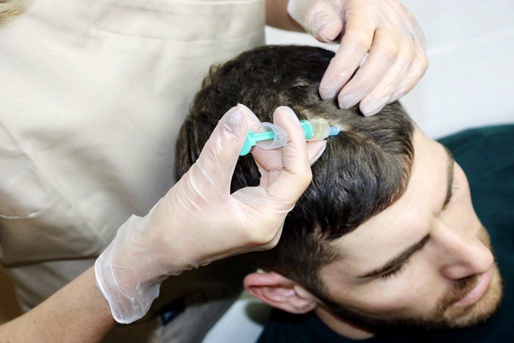 Mezoterapia - vlasy